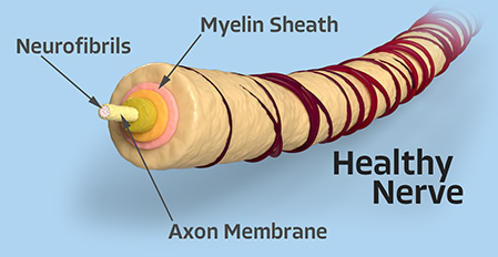 Healthy Nerve Diagram